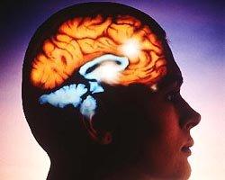 Ишемический инсульт. Причины его проявления
