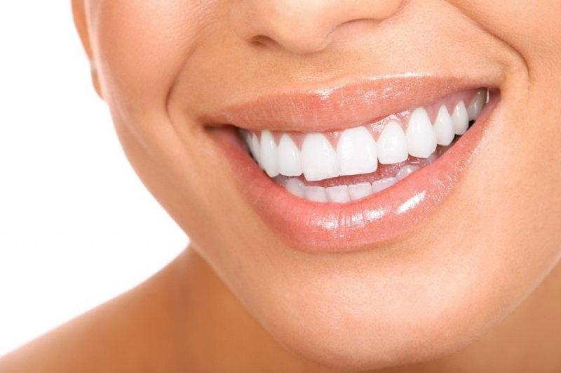 Скидка 85% на отбеливание зубов Amazing White Скидка есть!