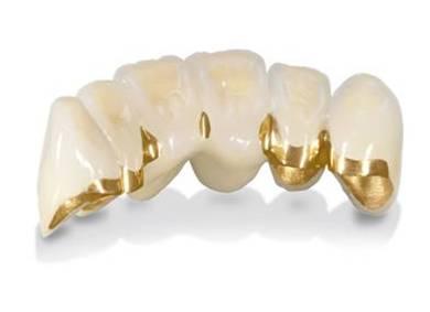 Протезирование зубов без обточки. Металлокерамика