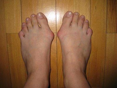 Виды и стадии шишек (косточек) возле больших пальцев ног