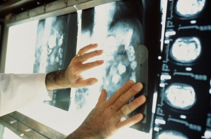 Через 15 лет рак настигнет каждого второго жителя Земли