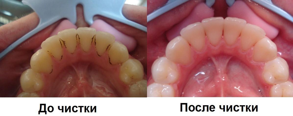 Положительные черты профессиональной чистки зубов