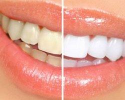 Отбеливание зубов от прошлых веков до наших дней