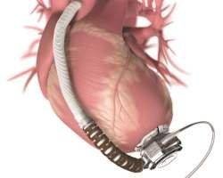 Создано бионическое сердце Бивакор