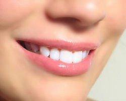 Особенности реминерализации зубов