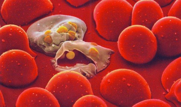Ученые смогли диагностировать малярию по запаху кожи больного