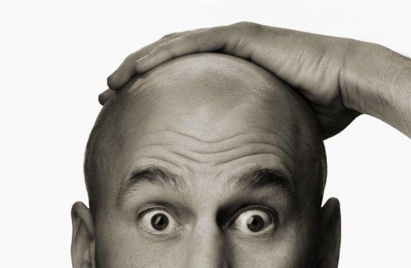 Лысые мужчины более подвержены раку простаты — Специалист