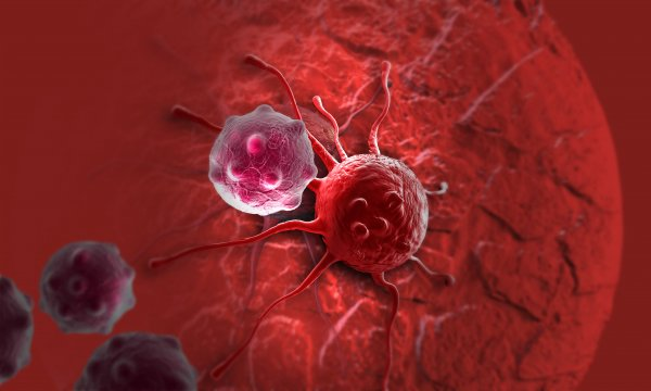Учеными названа болезнь-предвестница рака поджелудочной железы