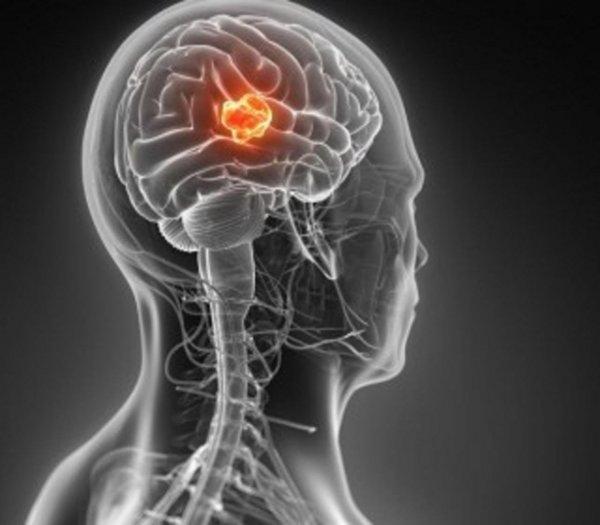 Учёные провели исследования гена, с помощью которого смогут лечить глиобластому