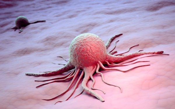 Ученые: Выявлена болезнь, которая повышает риск развития рака