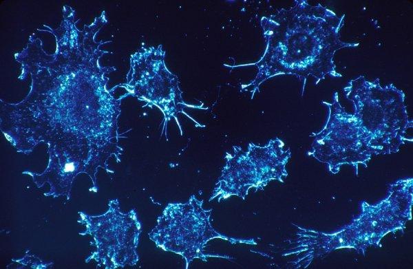 Мышьяк в сочетании с медицинским препаратом поможет в борьбе с раком