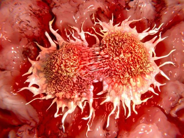Ученые из Гонконга заявили о пользе родия для лечения рака молочной железы