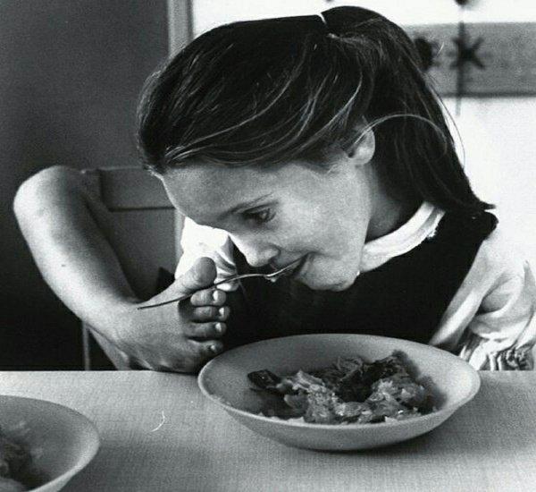 Дети без рук: Ученые рассказали об опасностях приема талидомида