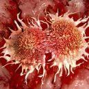 Ученые: Стресс и бактерии являются причиной рака толстой кишки