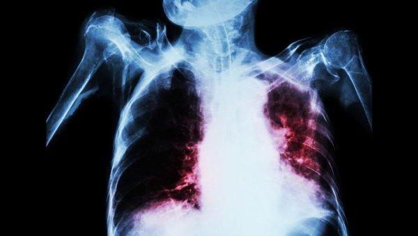 Стало известно название самой смертельной инфекции на планете