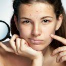 Угревую сыпь нужно начать лечить как можно раньше – дерматологи