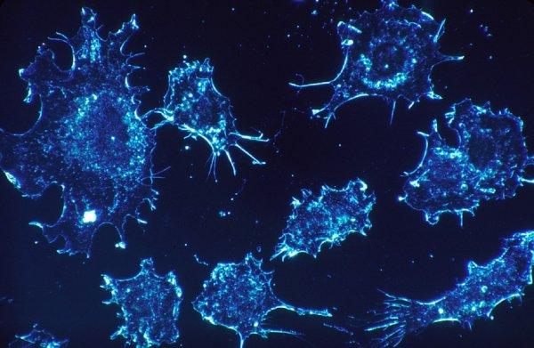 Ученые: Спирт из дрожжей поможет победить рак