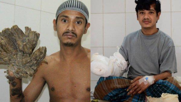«Человек-дерево» попал в больницу Бангладеша из-за критического ухудшения состояния