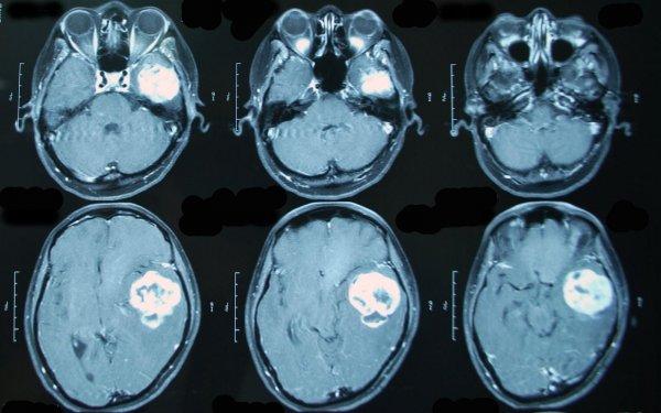 Ученые: Россияне стали чаще болеть раком мозга