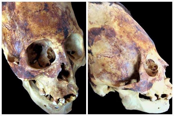 В Перу найден череп пришельца: Древние инопланетяне построили на Земле устройство связи – уфологи