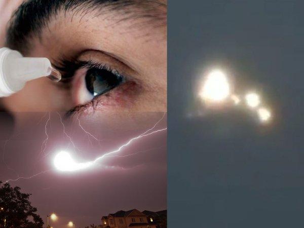 Выжигают глаза дотла: НЛО с Нибиру едва не лишил россиянку зрения