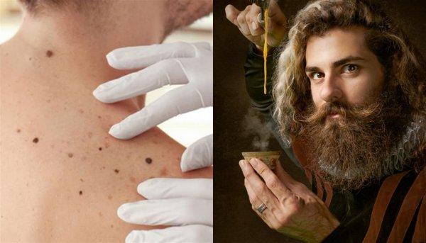 Родинку удалил – сглаз прикормил: Почему нельзя «очищать» кожу, рассказал маг