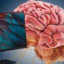 Xiaomi подключит человеческий мозг к компьютеру для борьбы с эпилепсией и депрессией