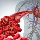 Ученые разработали новый метод для обнаружения тромбов